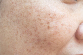 woman's cheek with visible sun damage
