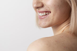 young woman with mild face and body acne